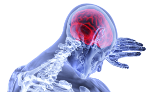 image of a brain scan showing brain is red could signify swelling